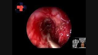 جراحی آندوسکوپیک انسفالوسل