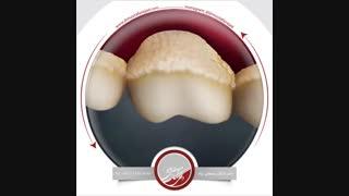 انیمیشن پلاک و تارتار دندان | دکتر مصطفی نژاد