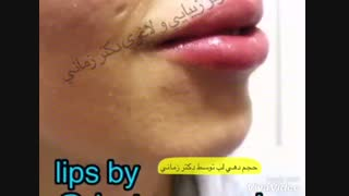 حجم دهی لب با تزریق ژل هیالورونیک اسید