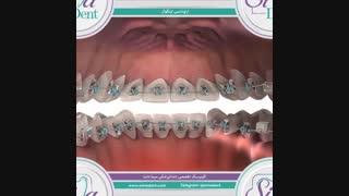ارتودنسی لینگوال | دندانپزشکی سیمادنت
