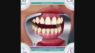 بلیچینگ - سفیدکردن دندان | دندانپزشکی سیمادنت