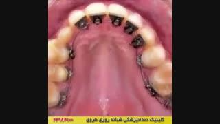 دندان مرتب با ارتودنسی دندان