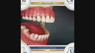 بریج دندان | دندانپزشکی سیمادنت