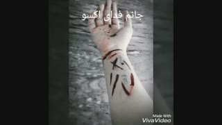 دستم با تیغ خط انداختمO_o