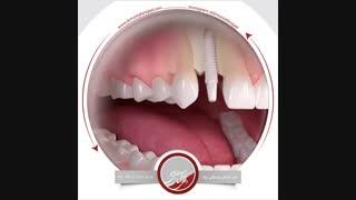 انیمیشن ایمپلنت دندان | دکتر مصطفی نژاد