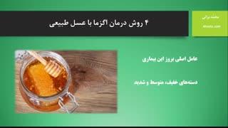 درمان اگزما با عسل طبیعی (آهوتا)