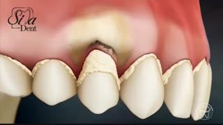 بهداشت دهان و دندان   دندانپزشکی سیمادنت