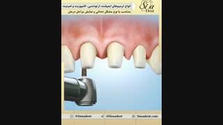 درمان های دندانپزشکی | دندانپزشکی سیمادنت