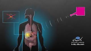 انقلاب ریزدستگاه های الکترونیکِ بدونِ باتری در بدن .