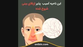 خطر جدی کندن موی داخل بینی، مثلث خطر - آنی بین