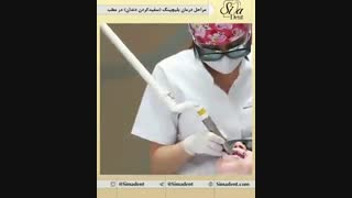 بلیچینگ (سفید کردن دندان) | دندانپزشکی سیمادنت