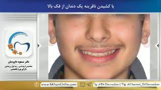 قبل و بعد ارتودنسی با کشیدن دندان | دکتر مسعود داوودیان