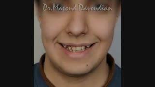 قبل و بعد ارتودنسی بدون کشیدن دندان  | دکتر مسعود داوودیان