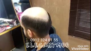 ترمیم موی الگانت02188962259