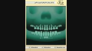 مراحل رویش دندان های شیری و دائمی   دندانپزشکی سیمادنت