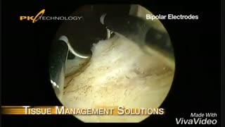 تراشیدن بافت پروستات از مجرا یا TURP