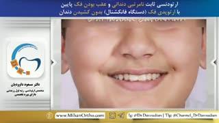 ارتودنسی نامرتبی دندانی و عقب بودن فک، توسط متخصص ارتودنسی