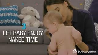 بهترین راه های جلوگیری از عرق سوز شدن نوزاد
