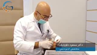 ریتینر ثابت ارتودنسی | دندانپزشکی سیمادنت