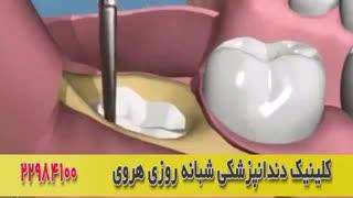 فیلم جراحی دندان عقل