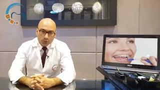 ارتودنسی و پوسیدگی دندان | دکتر داوودیان