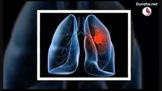 بهترین روش ها برای جلوگیری از سرطان ریه