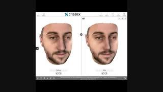 سه بعدی بینی مردان